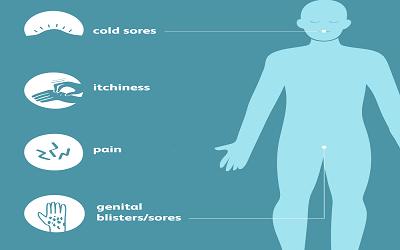 herpes-symptoms
