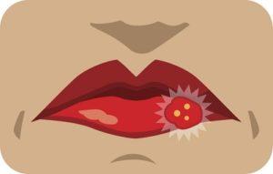 herpes talk